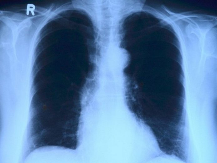 Doctors have called unusual symptoms of lung cancer