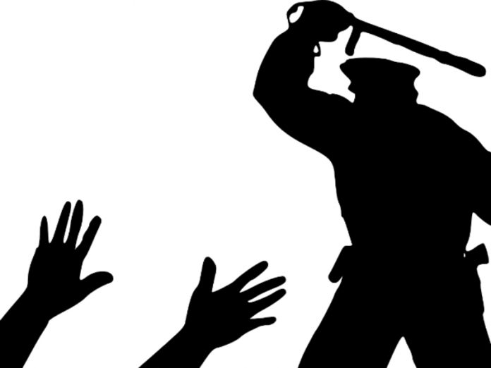 In Magnitogorsk were in the store without the mask the man received the baton from the police